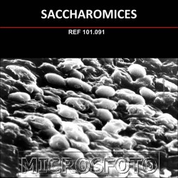 SACCHAROMICES