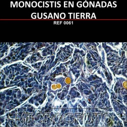 MONOCYSTIS DE LOMBRIZ DE...